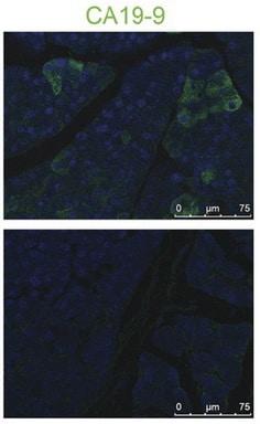 CA19-9 Antibody in Immunofluorescence (IF)