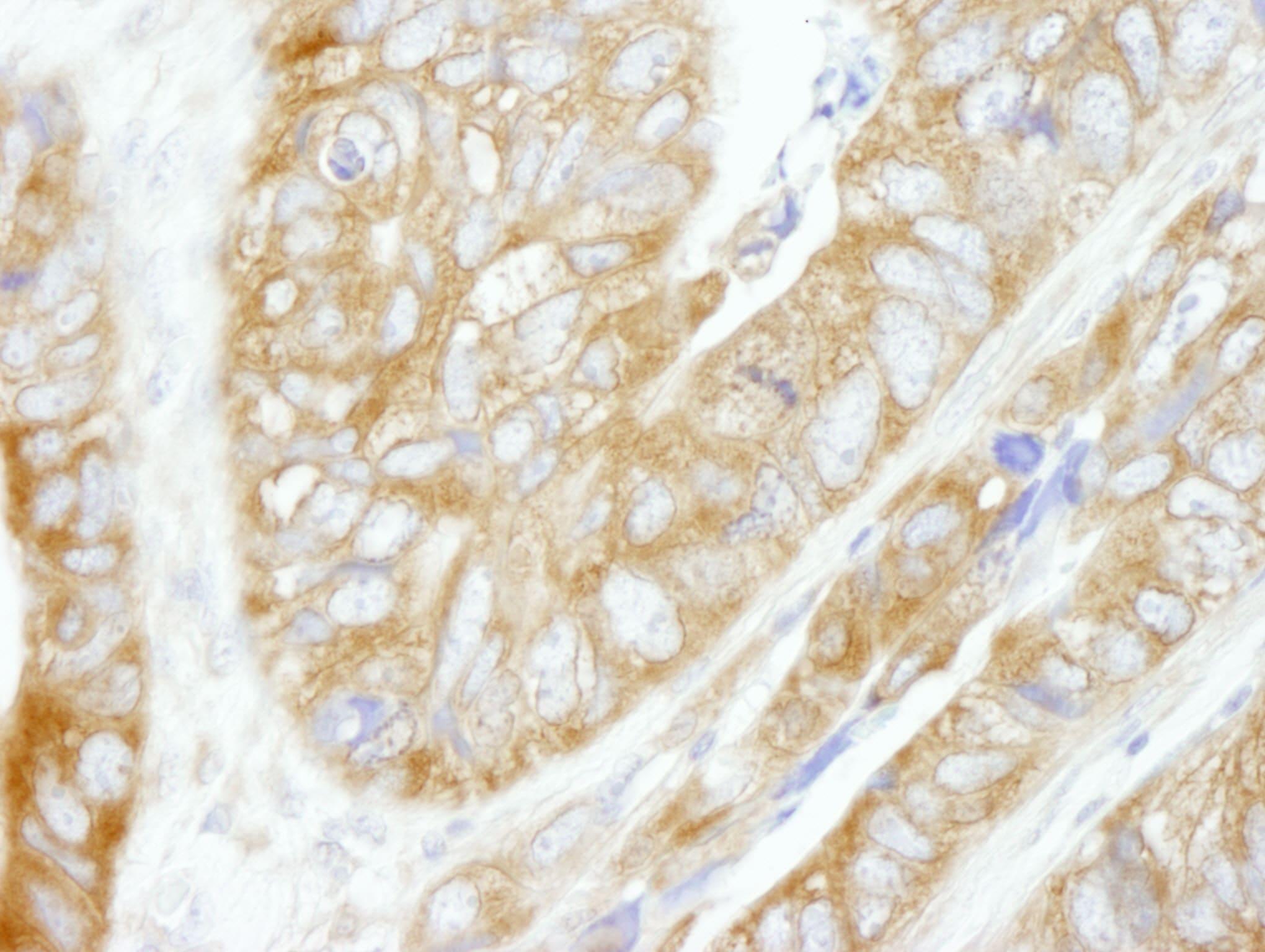 CAD Antibody in Immunohistochemistry (IHC)