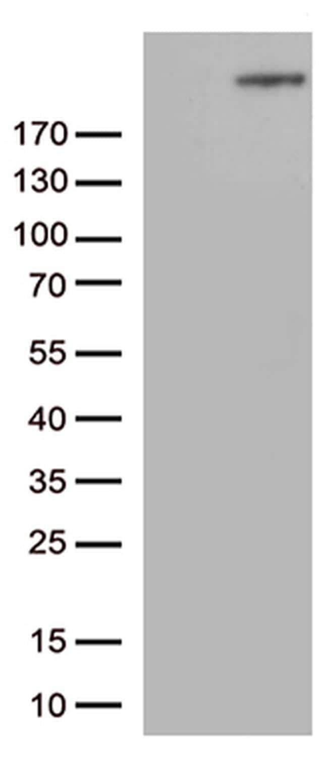 CAD Antibody in Western Blot (WB)