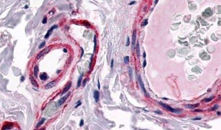 CALCRL Antibody in Immunohistochemistry (Paraffin) (IHC (P))