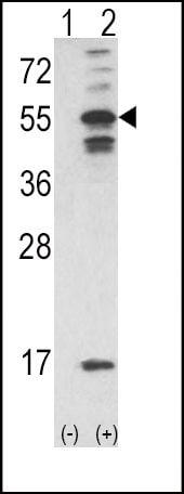 CaMKII alpha Antibody in Western Blot (WB)