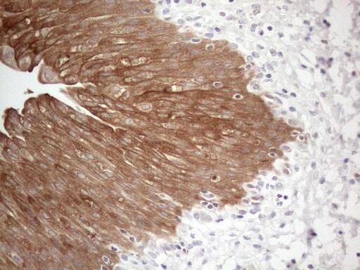 CAMK2B Antibody in Immunohistochemistry (Paraffin) (IHC (P))