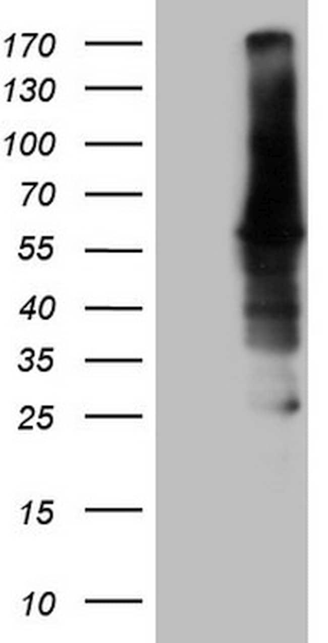 CAMK2B Antibody in Western Blot (WB)