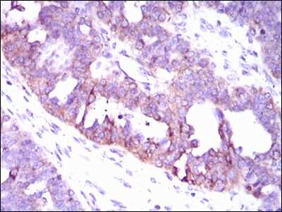 CaMKIV Antibody in Immunohistochemistry (IHC)