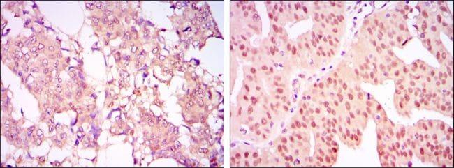PRMT4 Antibody in Immunohistochemistry (IHC)