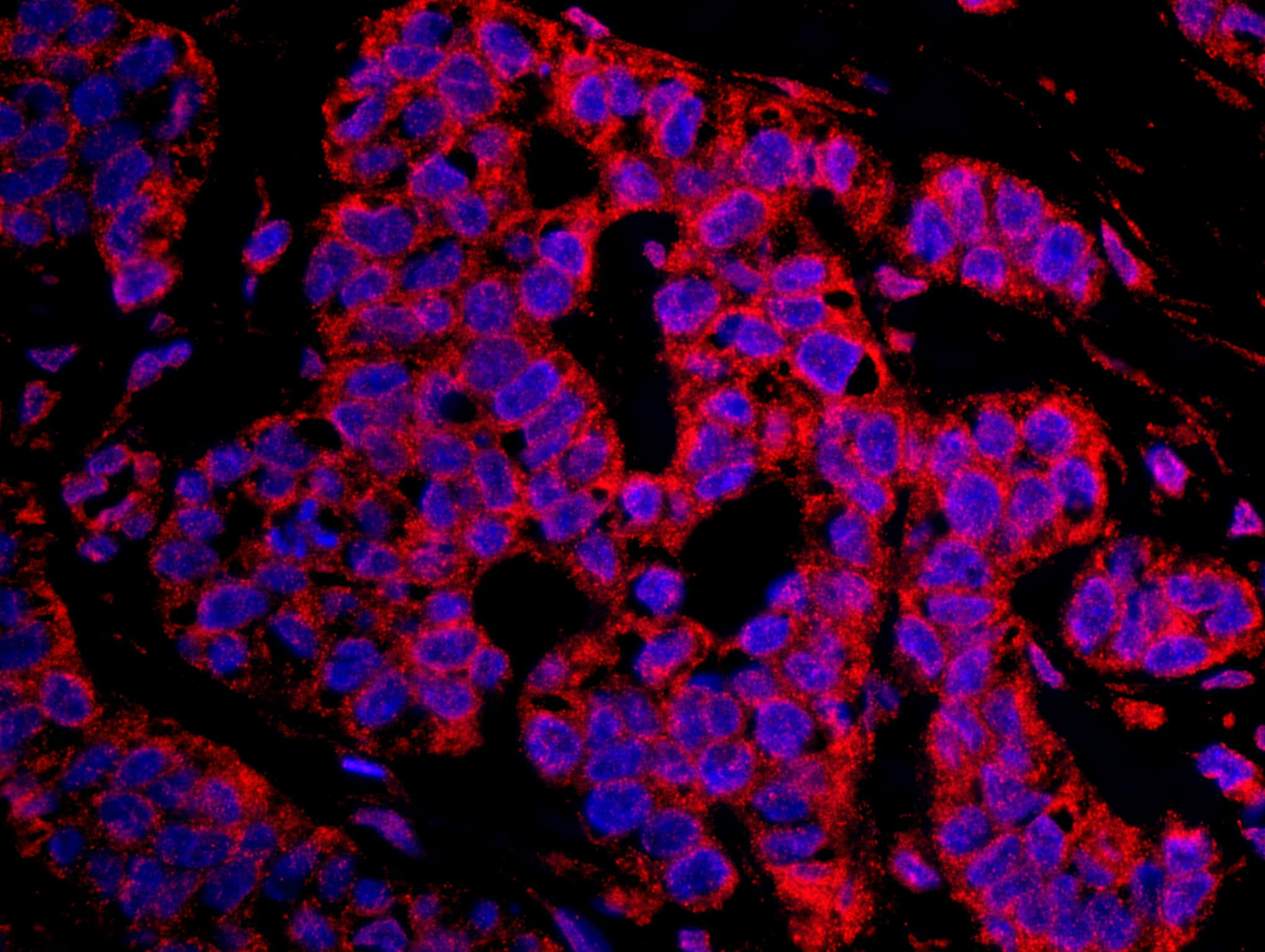CASC3 Antibody in Immunohistochemistry (IHC)