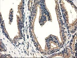 CAT Antibody in Immunohistochemistry (Paraffin) (IHC (P))