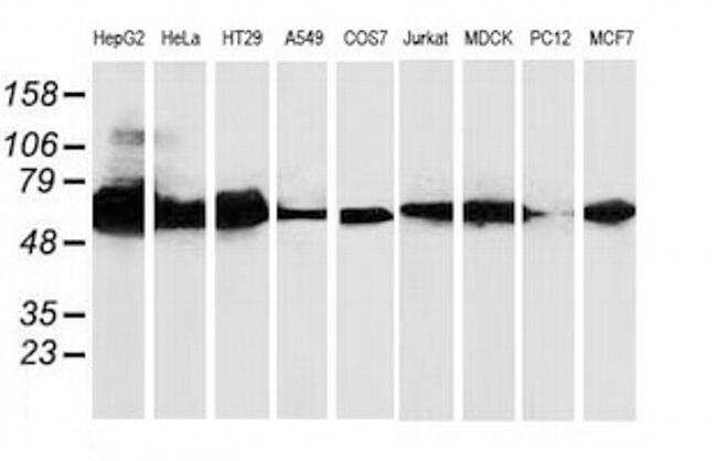 CAT Antibody in Western Blot (WB)