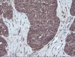 CBR3 Antibody in Immunohistochemistry (Paraffin) (IHC (P))