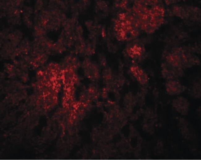 CCDC106 Antibody in Immunohistochemistry (IHC)