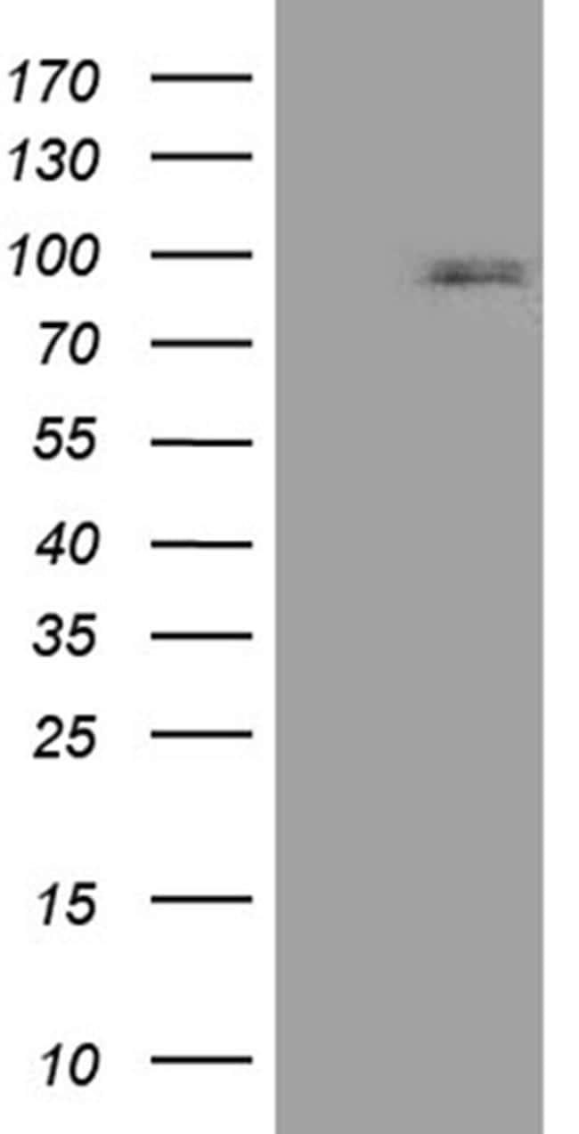CCDC27 Antibody in Western Blot (WB)