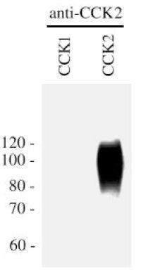 CCKBR Antibody in Western Blot (WB)
