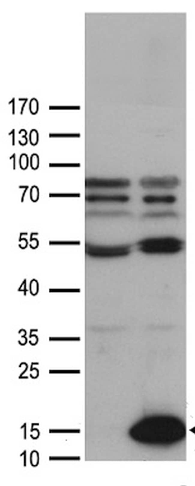 CCL27 Antibody in Western Blot (WB)