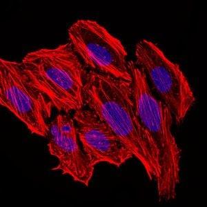 MCP-1 Antibody in Immunofluorescence (IF)