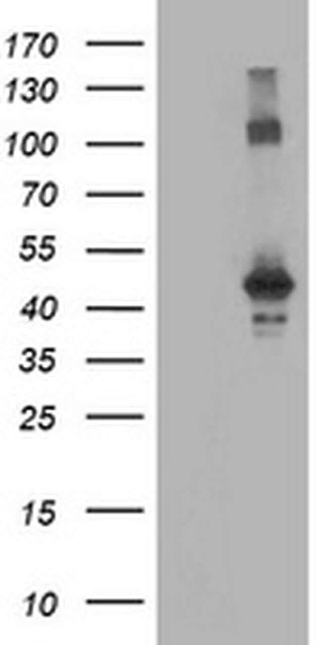 CCM2 Antibody in Western Blot (WB)