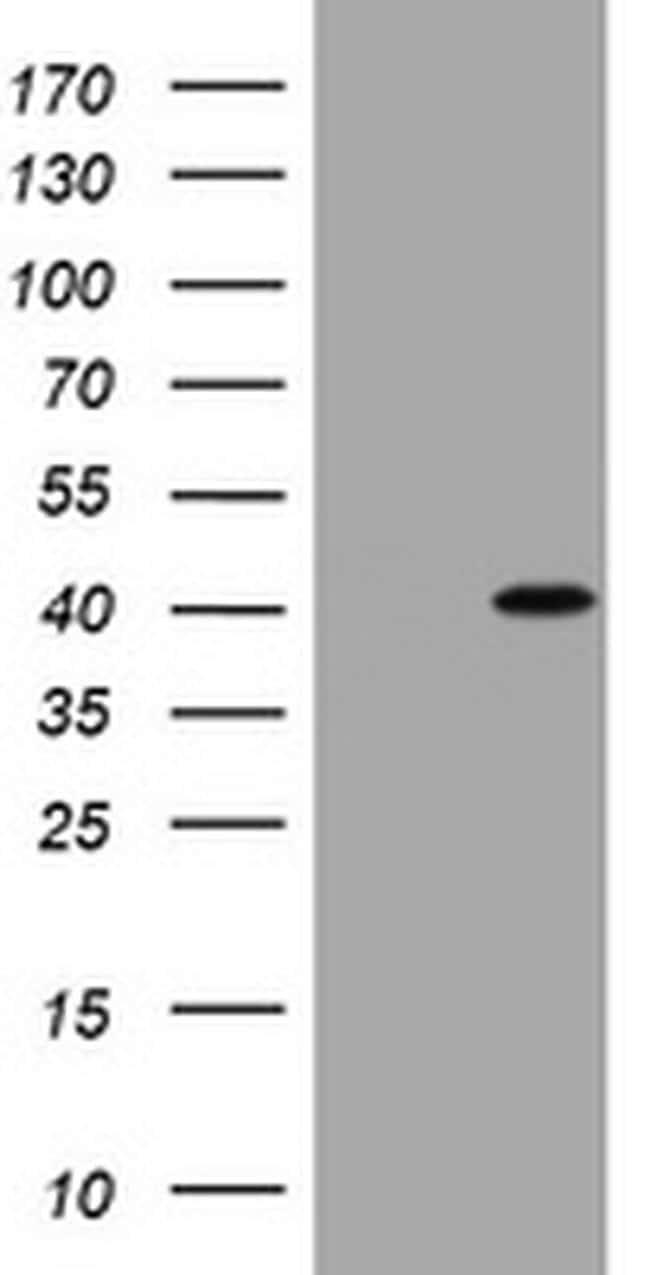 CCND1 Antibody in Western Blot (WB)
