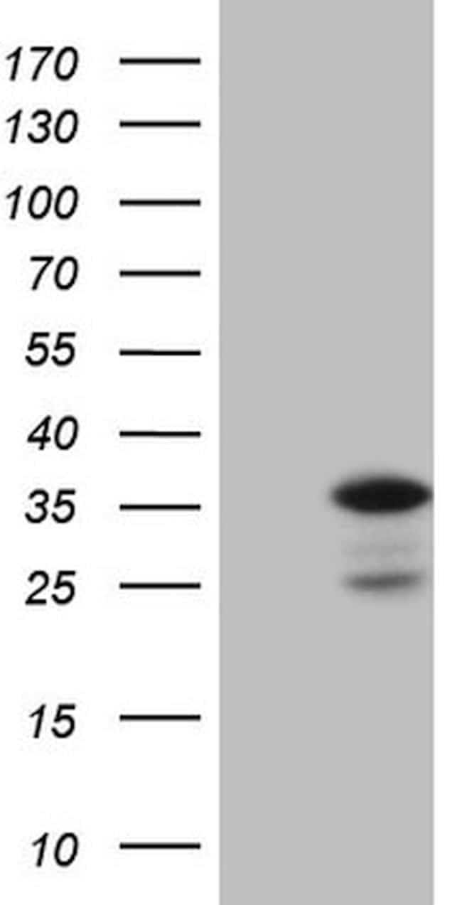 CCND2 Antibody in Western Blot (WB)