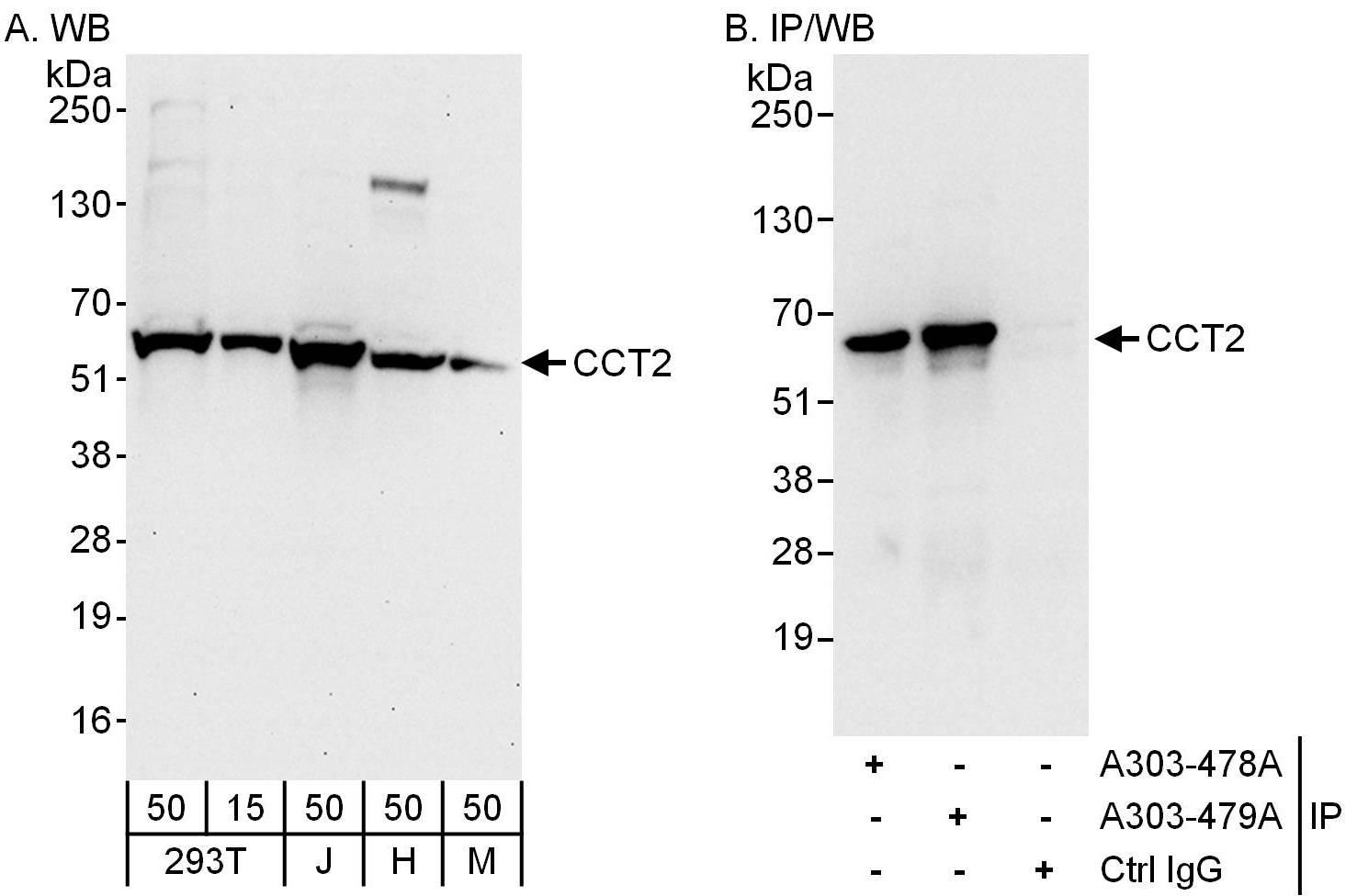 CCT2 Antibody in Western Blot (WB)