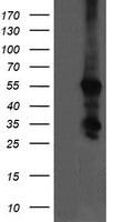 CCT8L2 Antibody in Western Blot (WB)