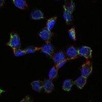 CD105 Antibody in Immunofluorescence (IF)