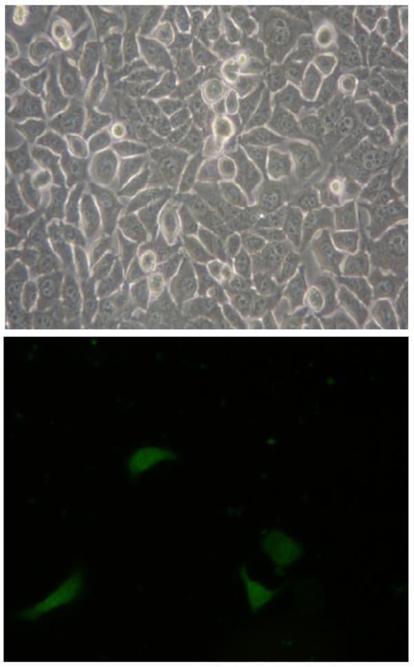 CD133 (Prominin-1) Antibody in Immunohistochemistry (IHC)