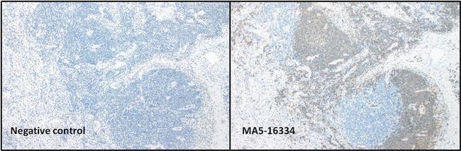 CD20 Antibody in Immunohistochemistry (IHC)