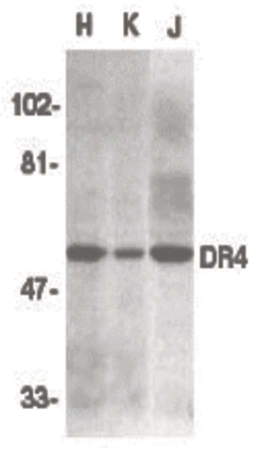 DR4 Antibody in Western Blot (WB)