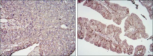 B7-H3 Antibody in Immunohistochemistry (IHC)