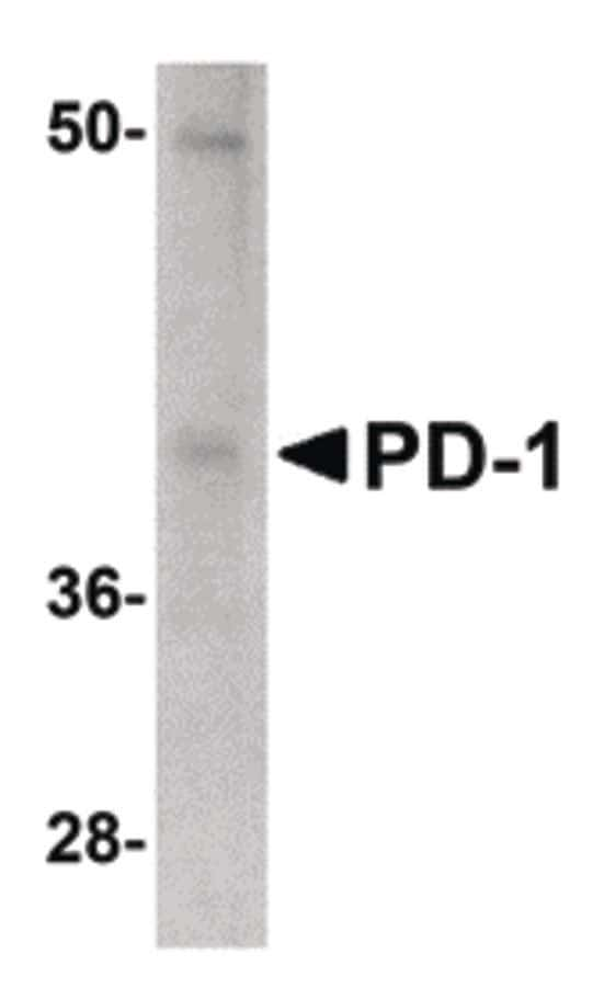 PD-1 Antibody in Western Blot (WB)
