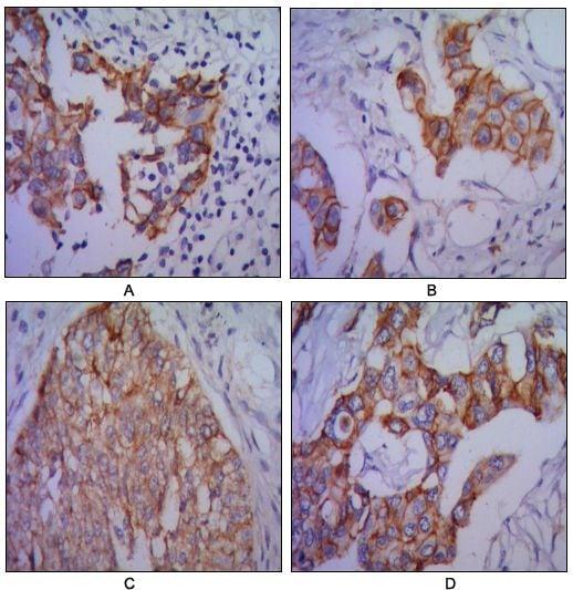N-cadherin Antibody in Immunohistochemistry (IHC)