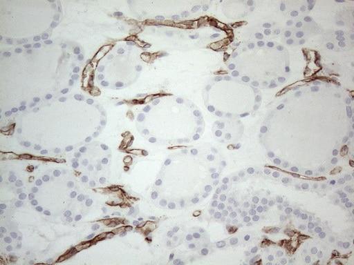CD34 Antibody in Immunohistochemistry (Paraffin) (IHC (P))