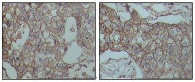 CD44 Antibody in Immunohistochemistry (IHC)