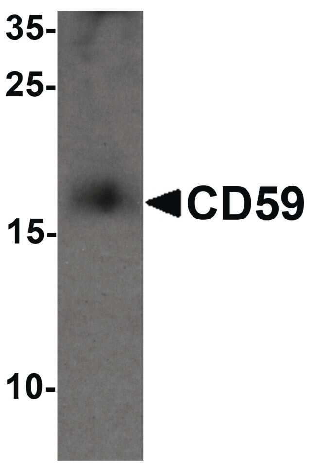 CD59 Antibody in Western Blot (WB)