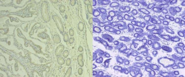 CD61 Antibody in Immunohistochemistry (IHC)