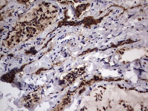 CD63 Antibody in Immunohistochemistry (Paraffin) (IHC (P))