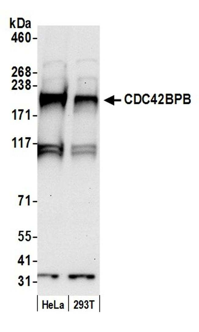 CDC42BPB/MRCK beta Antibody in Western Blot (WB)