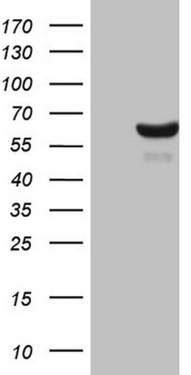 CDC6 Antibody in Western Blot (WB)