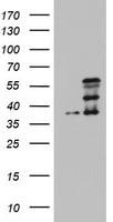 CDCA7L Antibody in Western Blot (WB)