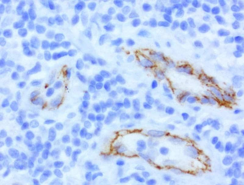 CDH2 Antibody in Immunohistochemistry (Paraffin) (IHC (P))