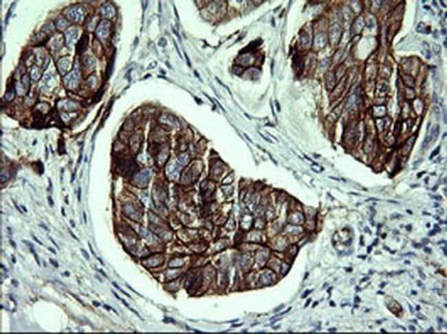 CDH3 Antibody in Immunohistochemistry (Paraffin) (IHC (P))
