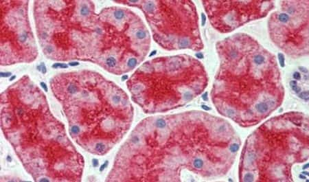 CDHR5 Antibody in Immunohistochemistry (Paraffin) (IHC (P))