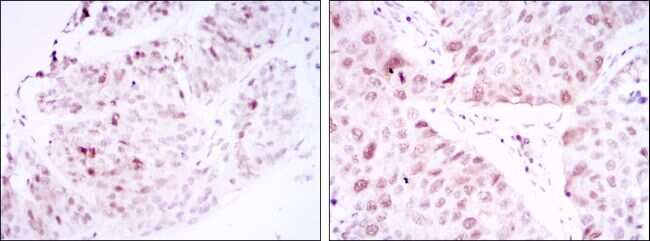 CDK1 Antibody in Immunohistochemistry (IHC)
