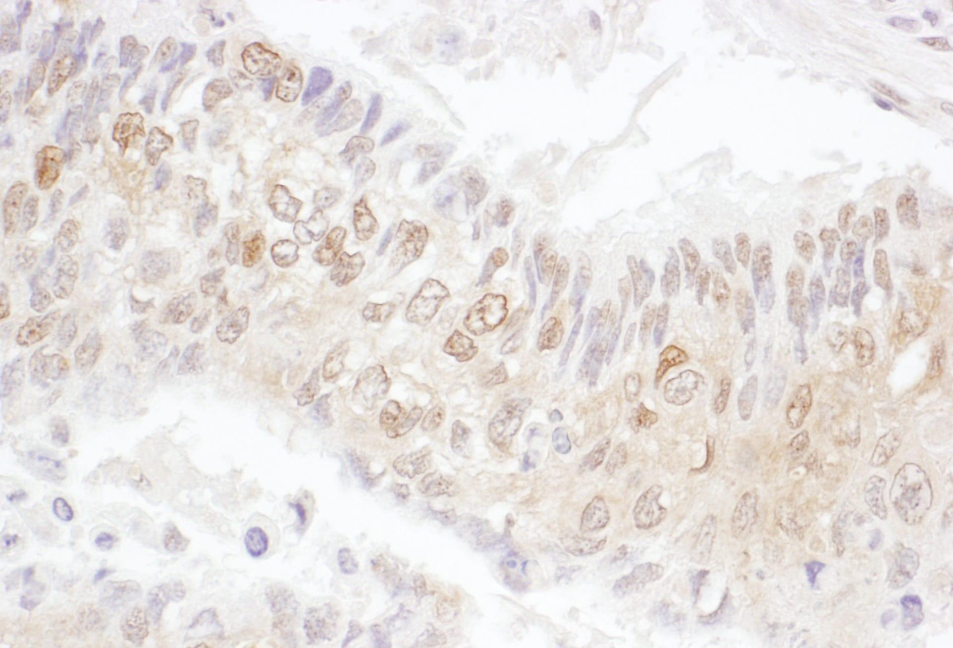 CDK4 Antibody in Immunohistochemistry (IHC)