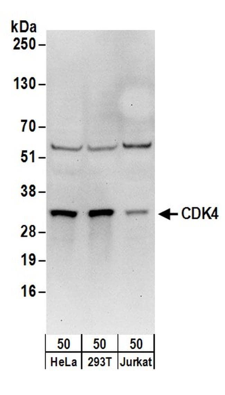 CDK4 Antibody in Western Blot (WB)
