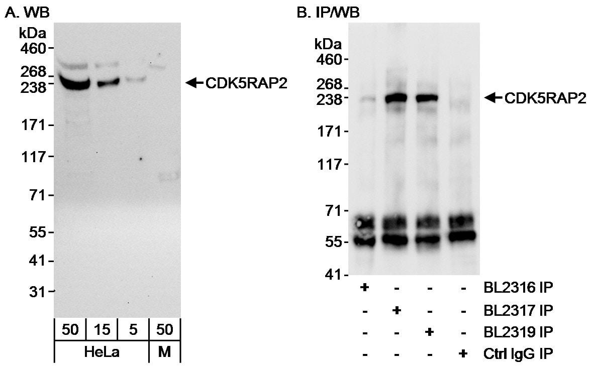 CDK5RAP2 Antibody in Western Blot (WB)