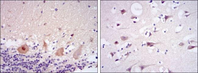 CDK5 Antibody in Immunohistochemistry (IHC)