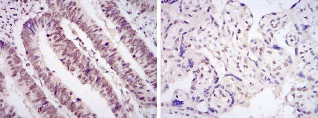 CDK9 Antibody in Immunohistochemistry (IHC)