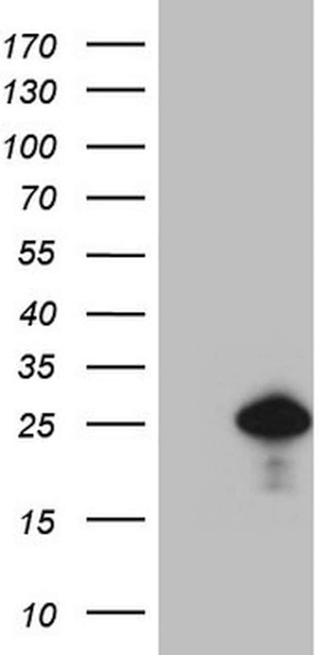 CDKN1A Antibody in Western Blot (WB)