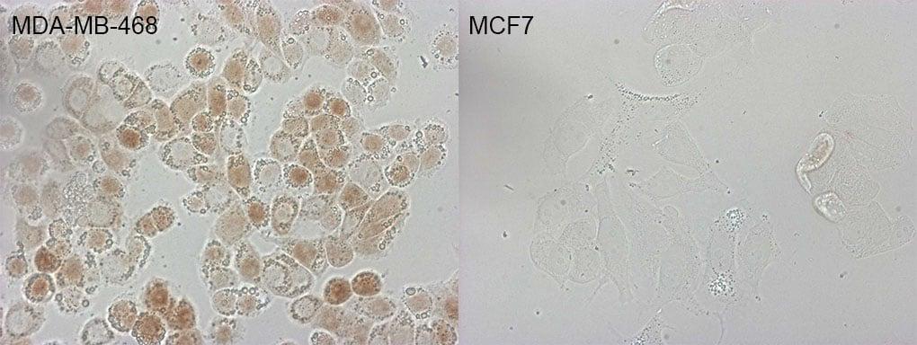CDKN2A Antibody in Immunofluorescence (IF)