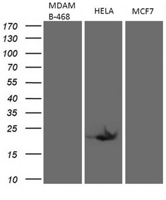 CDKN2A Antibody in Western Blot (WB)